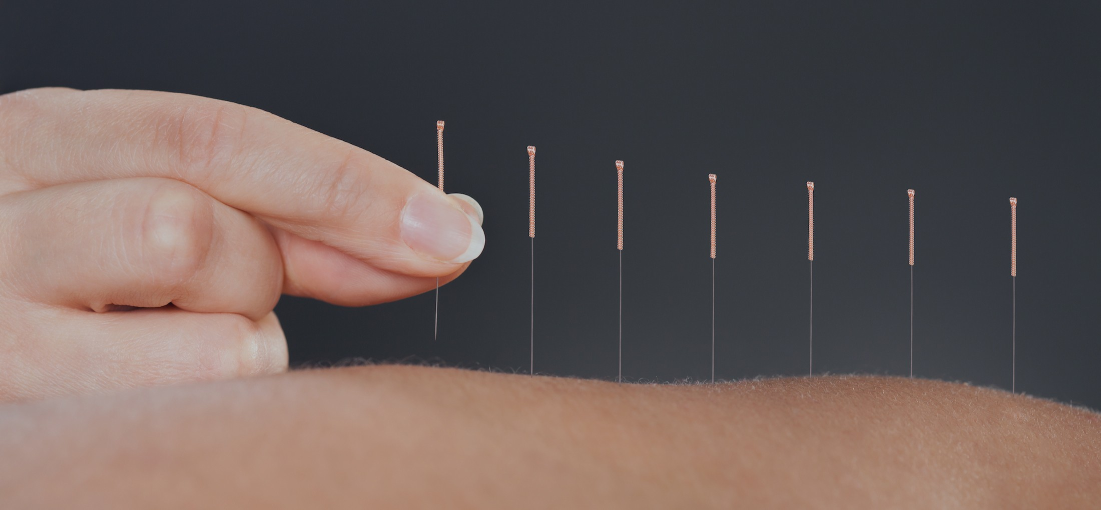 ACUPUNCTURE / TRADITIONAL CHINESE MEDICINE - Balance Complimentary Medicine